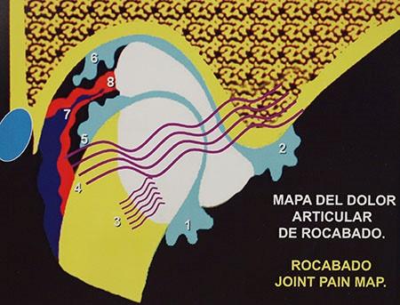 Mapa-dolor-articular