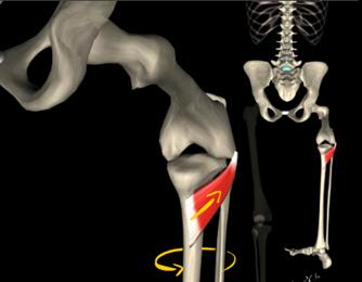 El mejor medio a la hernia intervertebral